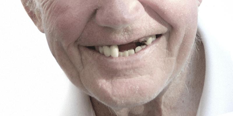 malattia parodontale piorrea