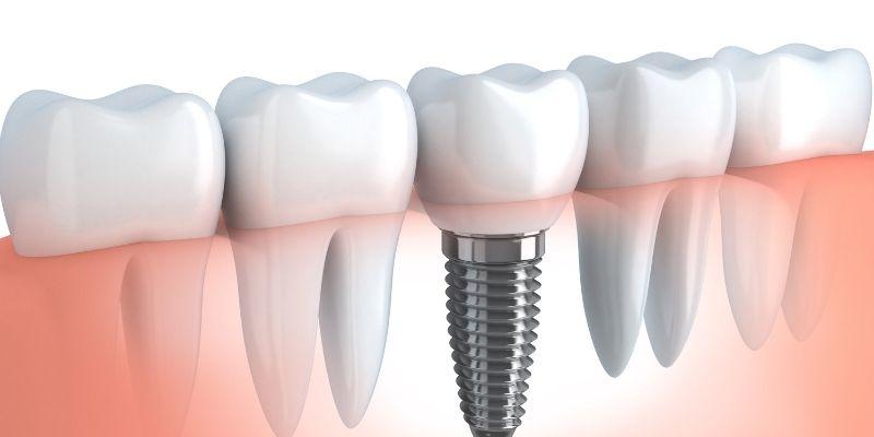 impianti dentali prevenzione infiammazioni
